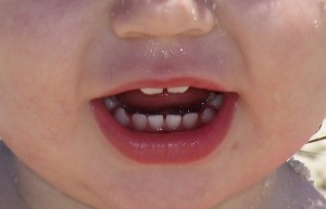 babyteeth2 300x193 How to Handle Tattling Kids